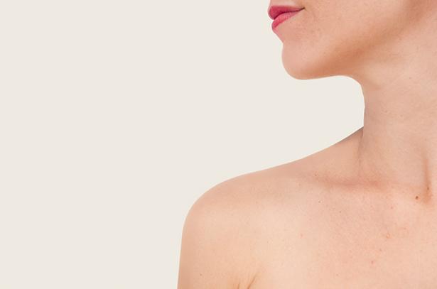 liposuccion-de-cuello