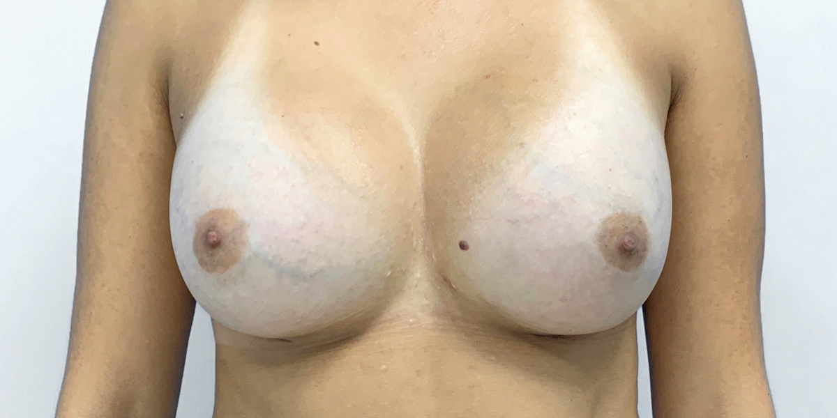 After-Mamoplastia 1