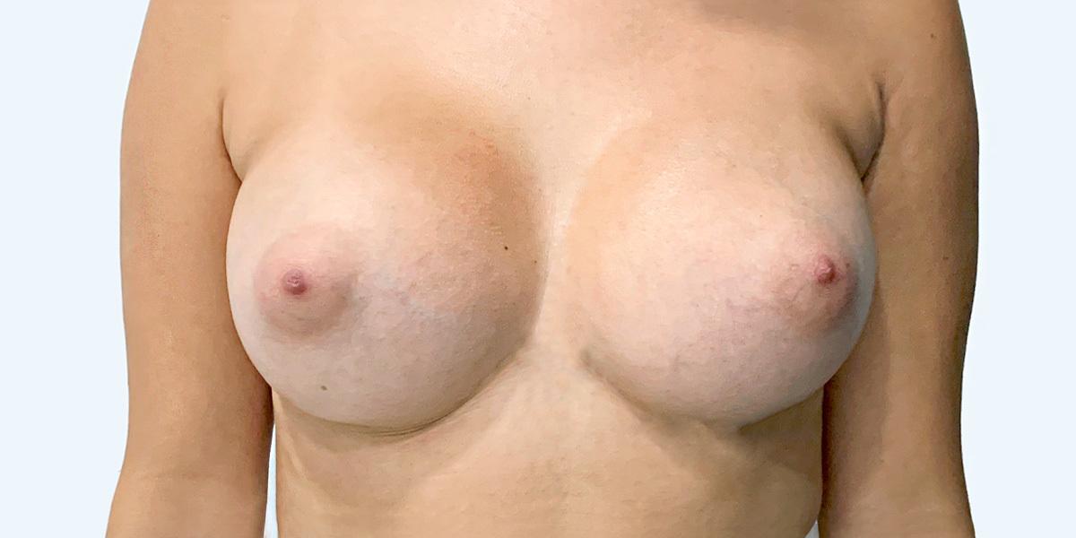 After-Mamoplastia 2