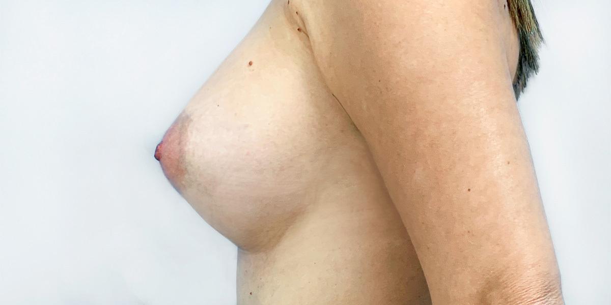 After-Mamoplastia 3