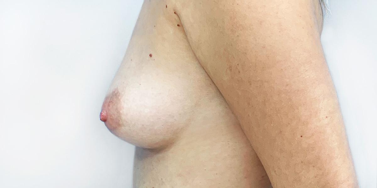 Before-Mamoplastia 3