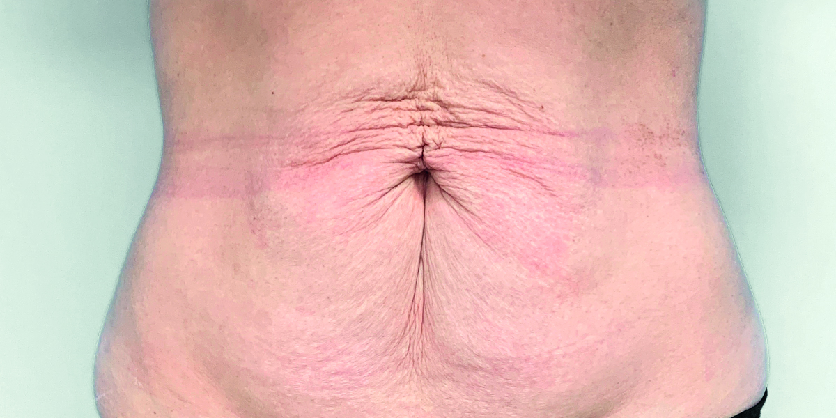 Before-Abdominoplastia1