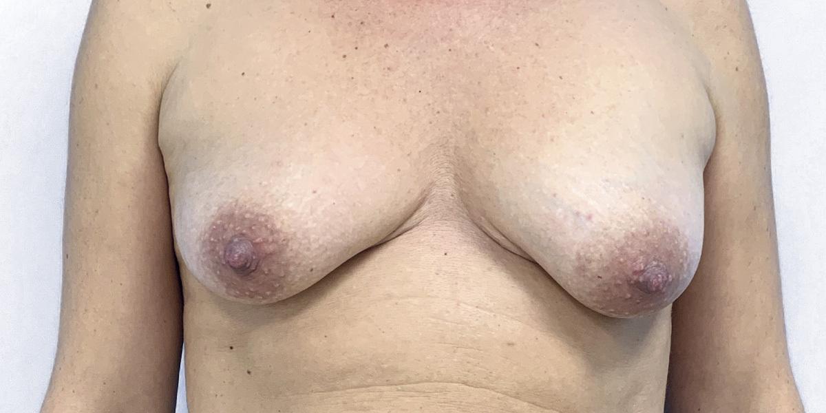 Before-Mamas Tuberosas II