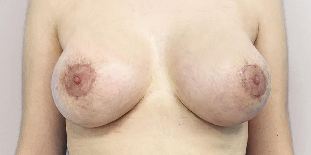 After-Mamas Tuberosas
