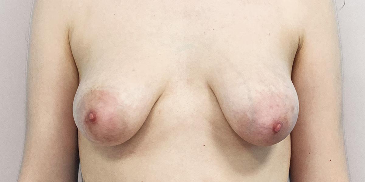 Before-Mamas Tuberosas