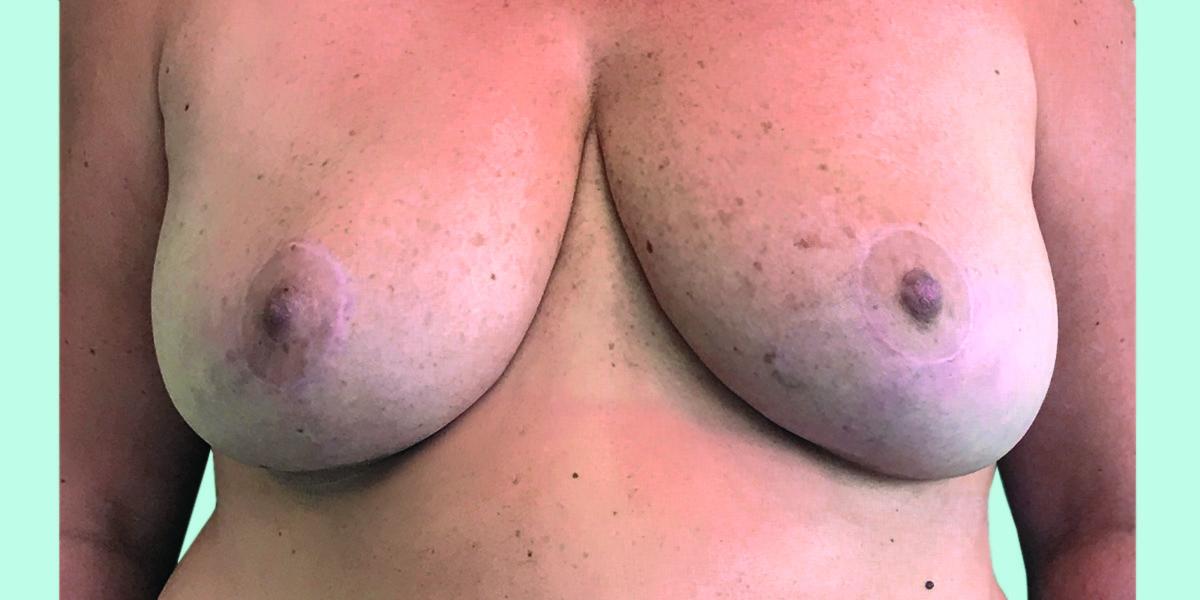 After-reducción mamaria 3