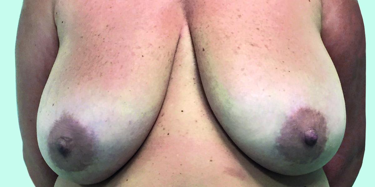 Before-reducción mamaria 3