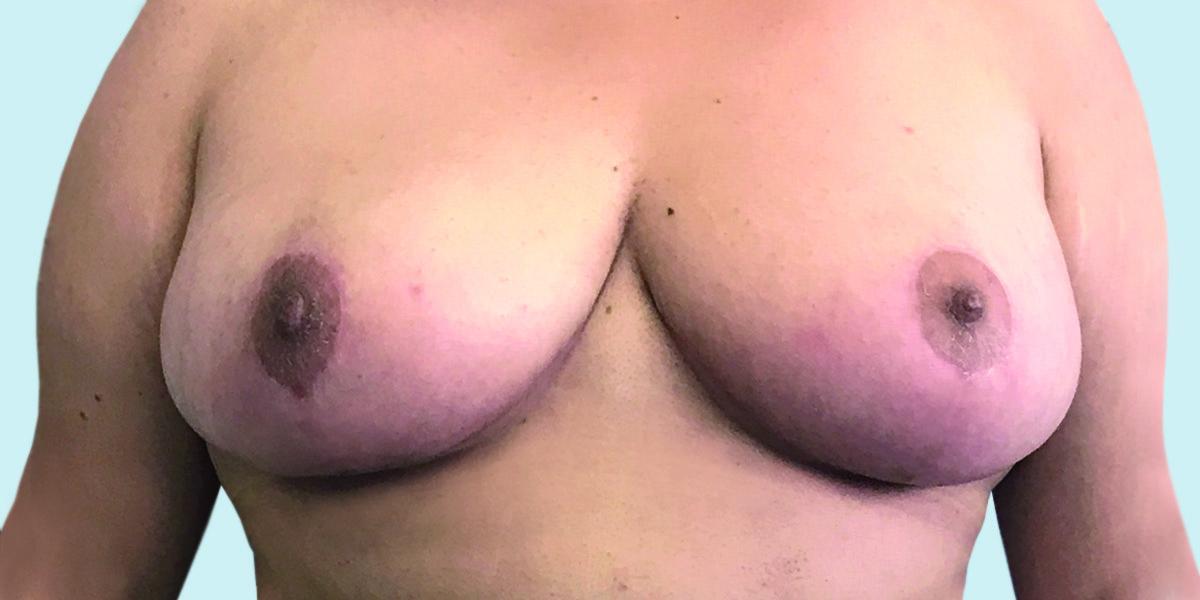 After-reducción mamaria 2