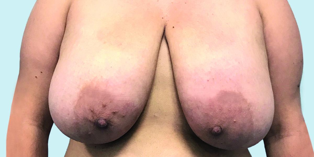 Before-reducción mamaria 2
