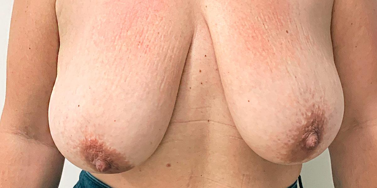 Before-reduccion mamaria 4