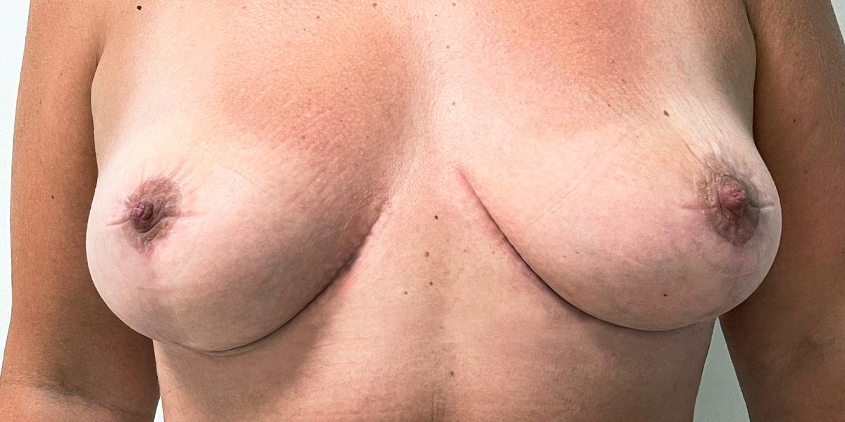 After-reduccion mamaria 4
